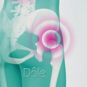 l'arthrose en mésothérapie