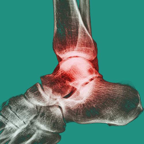 Chevilles mésothérapie douleurs